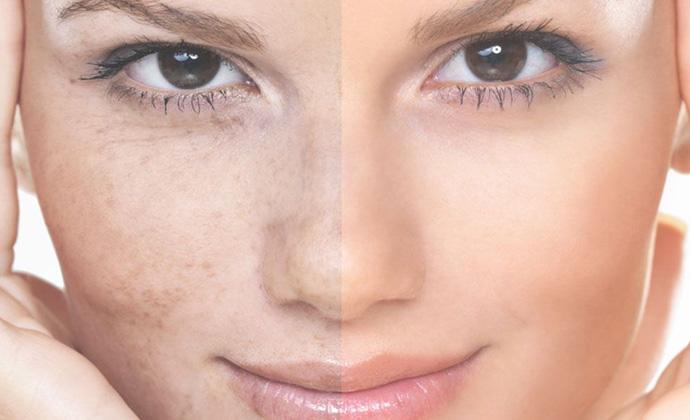 مقابله با لکهای صورت در فصل تابستان