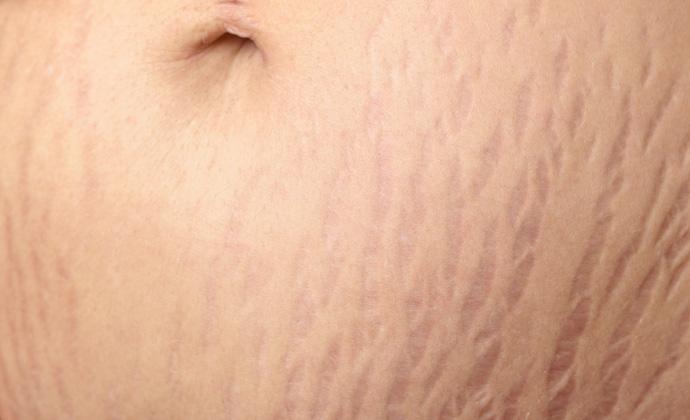 کاربرد لیزر در درمان ترکهای پوستی ناشی از حاملگی