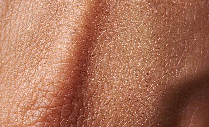 کووید ۱۹ و پوست