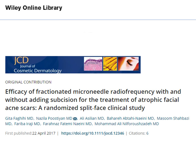 Efficacy of fractionated microneedle radiofrequency with and without adding subcision for the treatment of atrophic facial acne scars: A randomized split‐face clinical study