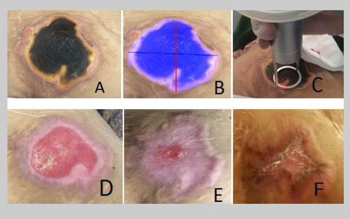 The Efficacy of Carbone Dioxide Laser Debridement Along With Low-Level Laser Therapy in Treatment of a Grade 3 Necrotic Burn Ulcer in a Paraplegic Patient