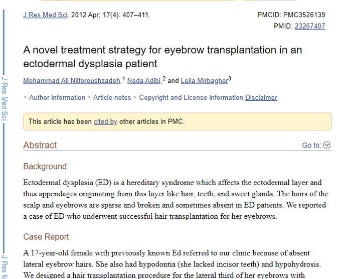A novel treatment strategy for eyebrow transplantation in an ectodermal dysplasia patient