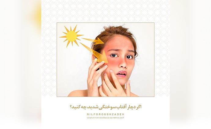 آفتاب سوختگی پوست