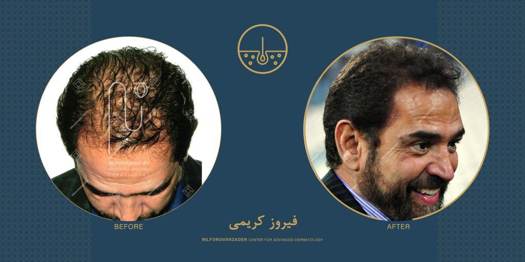 فیروز کریمی قبل و بعد از کاشت مو