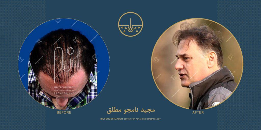 مجید نامجو مطلق قبل و بعد از کاشت مو