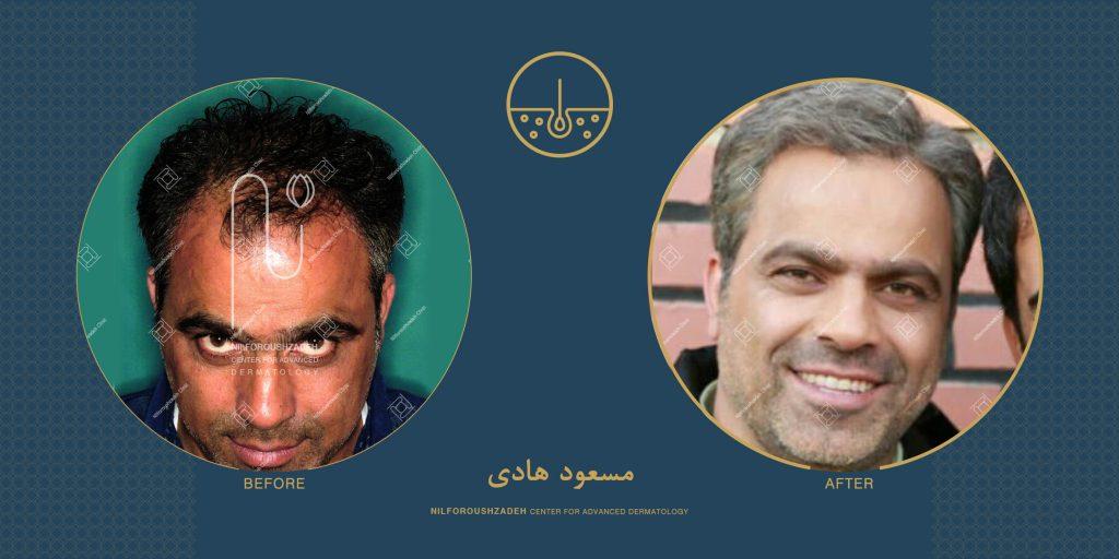 مسعود هادی قبل و بعد
