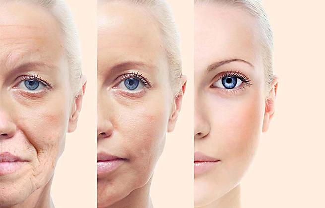 جوانسازی پوست جوانسازی صورت