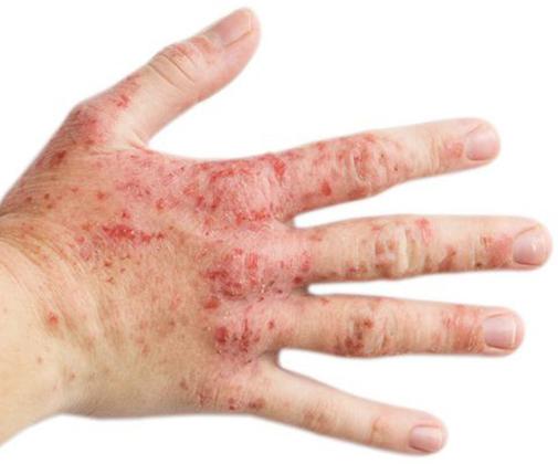 اگزمای آتوپیک پیشگیری، علل، علائم و درمان