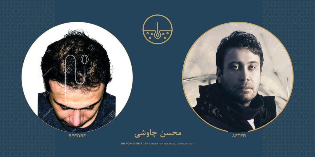 محسن چاوشی قبل و بعد از کاشت مو