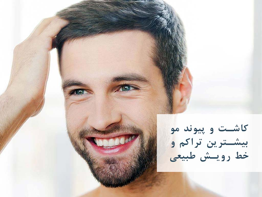 کاشت مو با تراکم بالا و خط رویش طبیعی